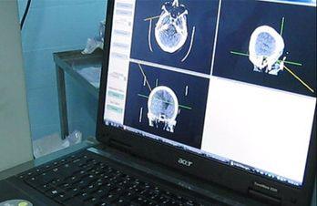 Artículo sobre innovación frugal en Hospital de Tacuarembó