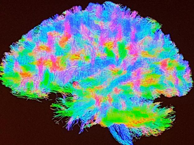 """Evento : """"Escuchando a las neuronas : La próxima generación de interfaces neurales"""""""